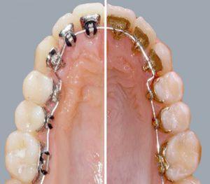 Ortodoncia lingual y ortodoncia lingual incognito