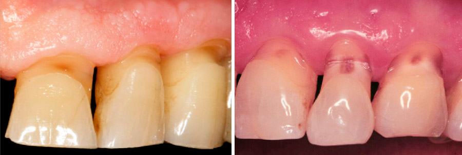 Abfracción dental (Glosario BQDC)