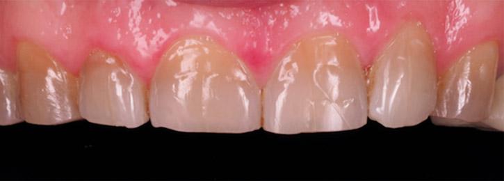 Abrasión dental (Juan Loscos - BQDC)