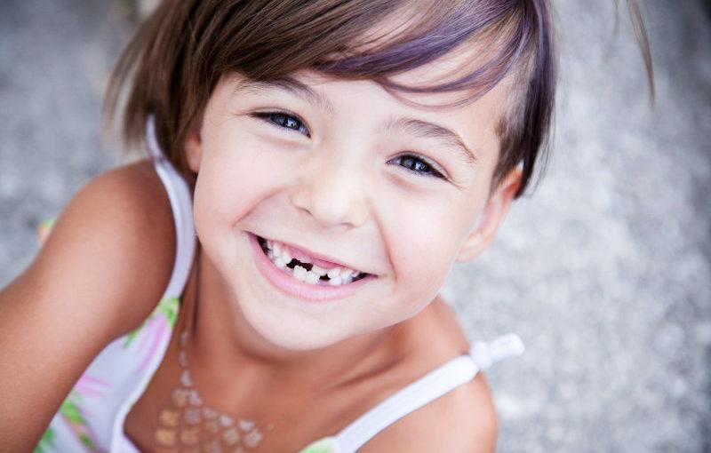 agenesia dental de caney