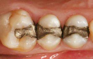 Amalgama en dientes posteriores, Glosario BQDC