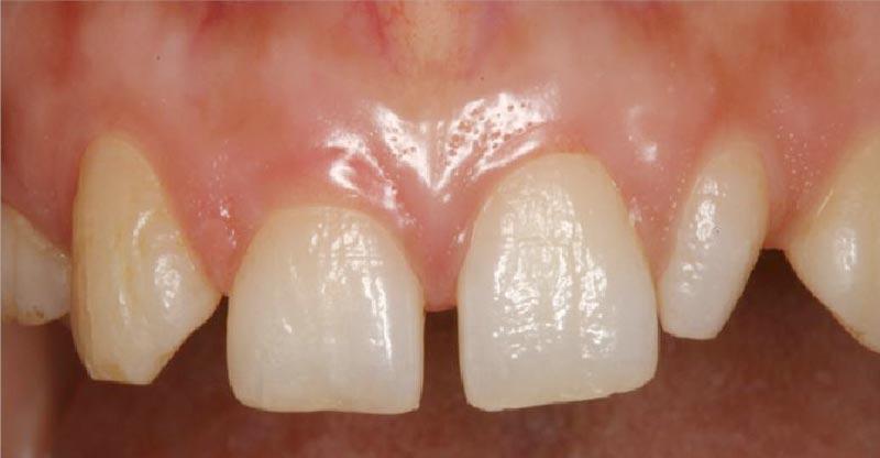 Anodoncia dental del incisivo, Glosario BQDC