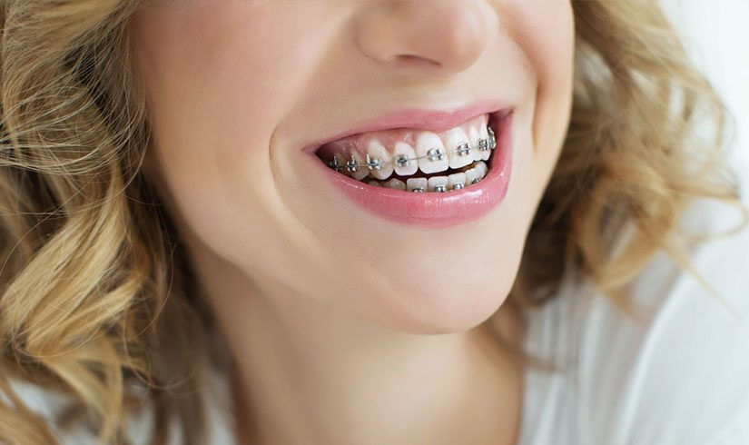 Aparatos fijos en ortodoncia