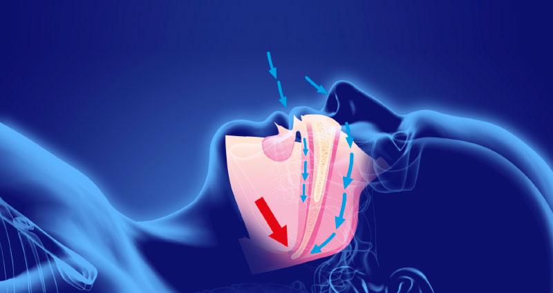 Síndrome de la apnea obstructiva del sueño