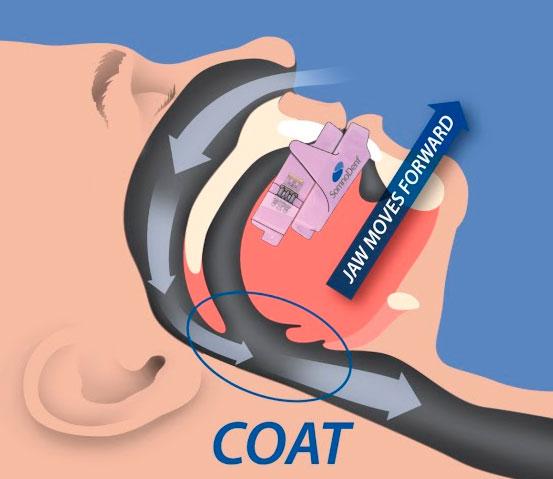 Síndrome de la apnea obstructiva del sueño: tratamiento