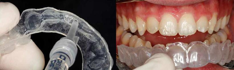 Blanqueamiento dental ambulatorio, Glosario BQDC