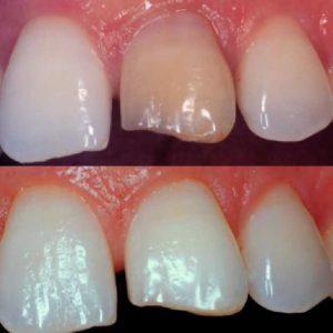 Antes y después del Blanqueamiento dental, Glosario BQDC