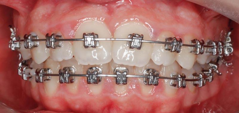 Brackets autoligado, Ortodoncia