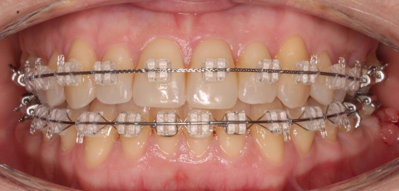Brackets estéticos, tratamiento ortodoncia