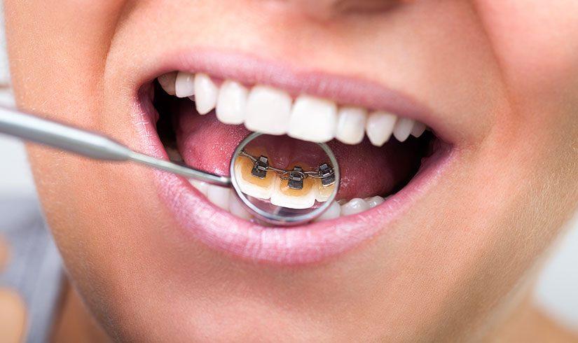 Brackets de incógnito - Ortodoncia