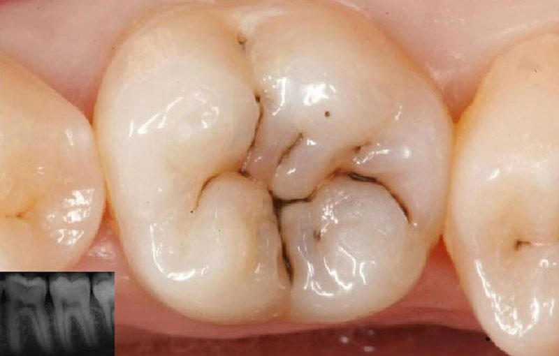 Caries dental, Glosario BQDC