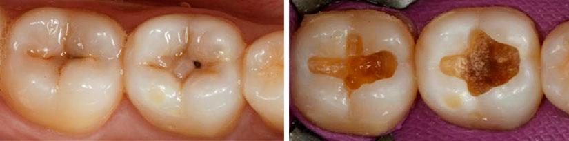 Caries dentaria