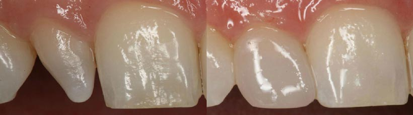 Antes y después con carillas dentales de composite