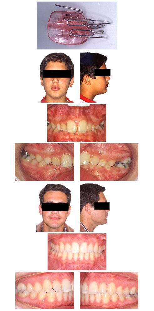 Figura de un activador y tratamiento