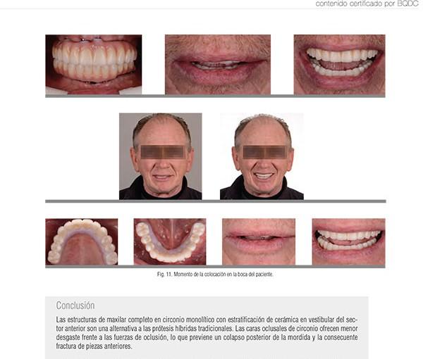 Caso clínico dental