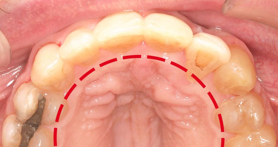 Caso clínico diente impactado: Resultado tratamiento
