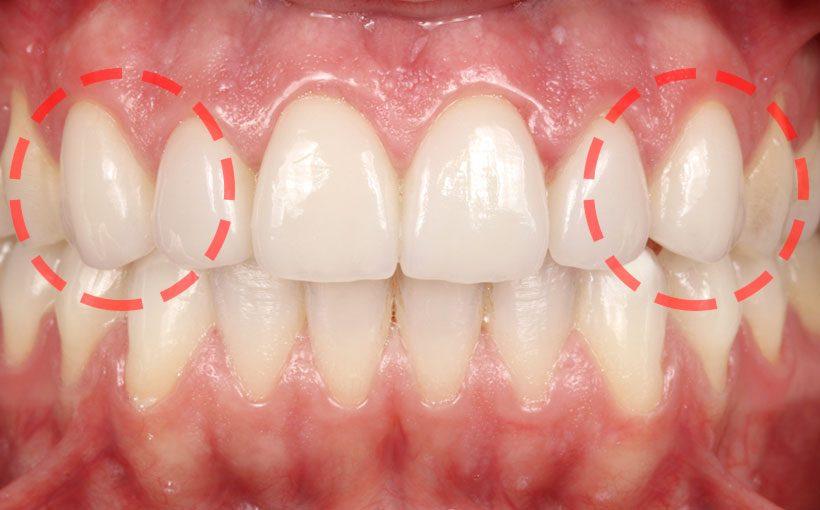 Cuáles son los dientes caninos