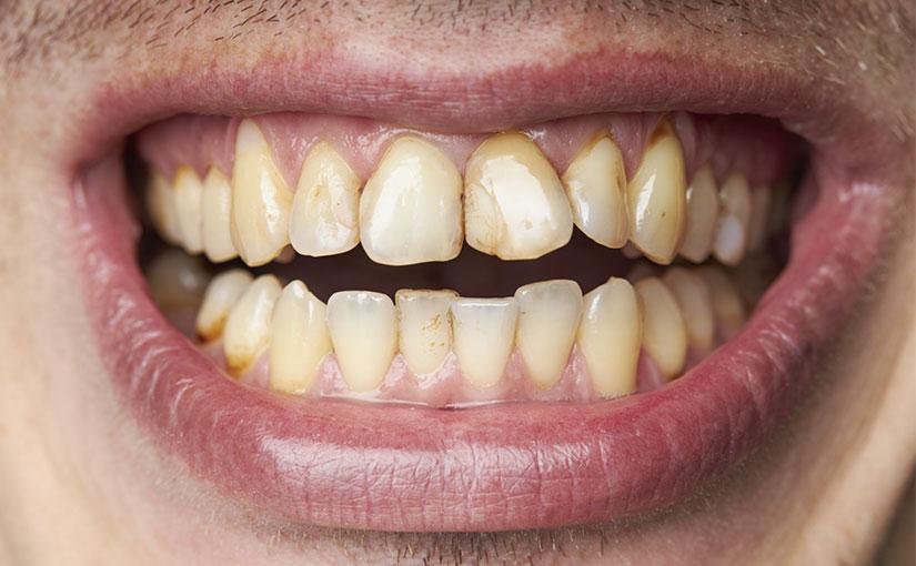 El tabaco mancha tus dientes