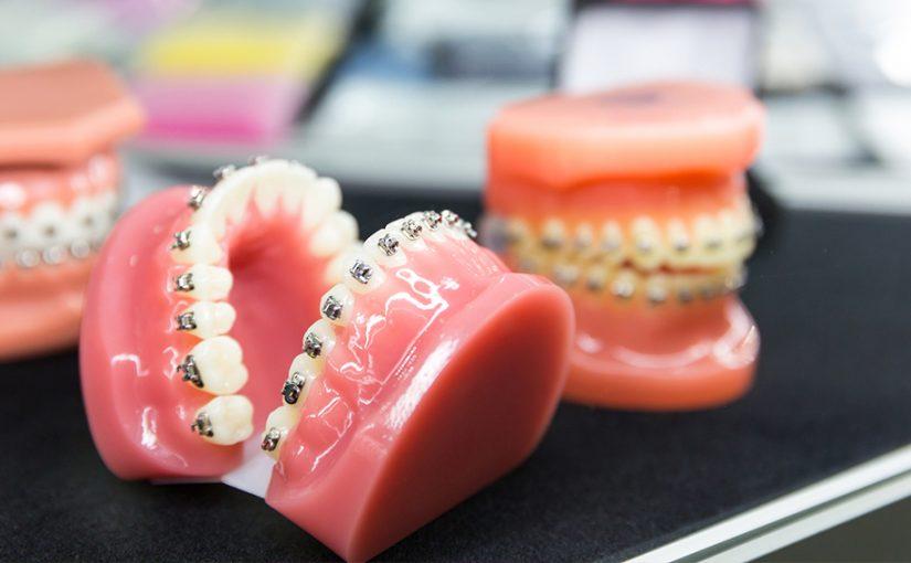 ¿Cómo elijo mi tratamiento de ortodoncia?
