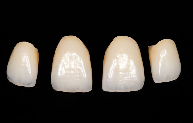 Corona dental cerámica