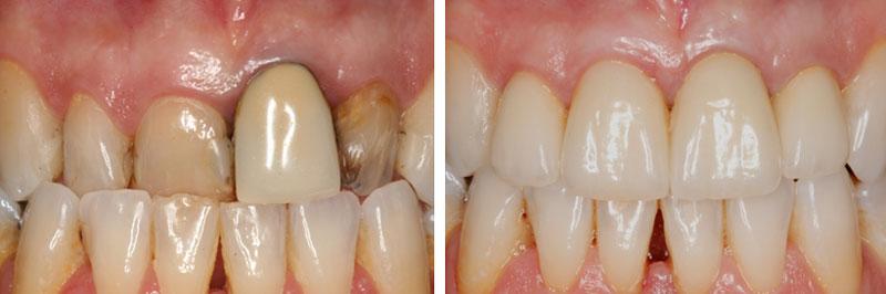 Corona Dental Cerámica, antes y después