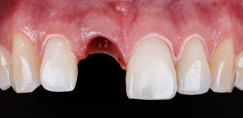 Cresta ósea - Cresta dental
