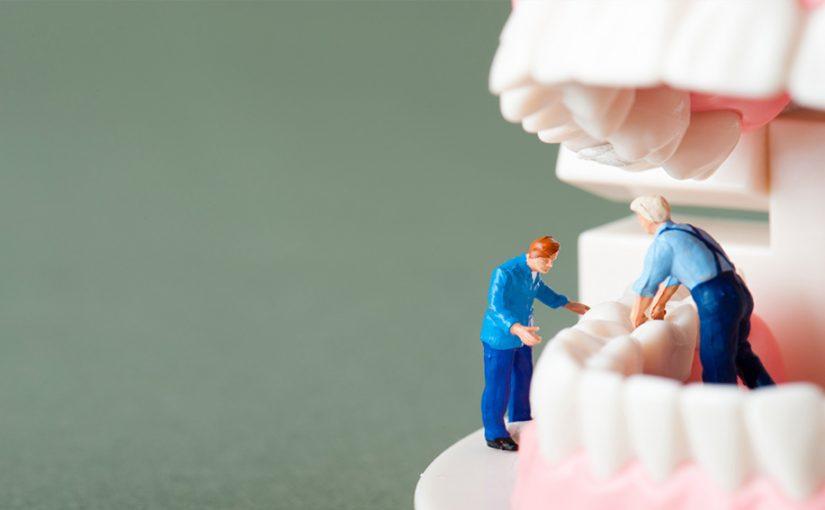 Cómo asegurar la eficacia de un implante dental