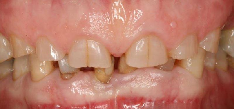 Desgaste dental, Glosario BQDC