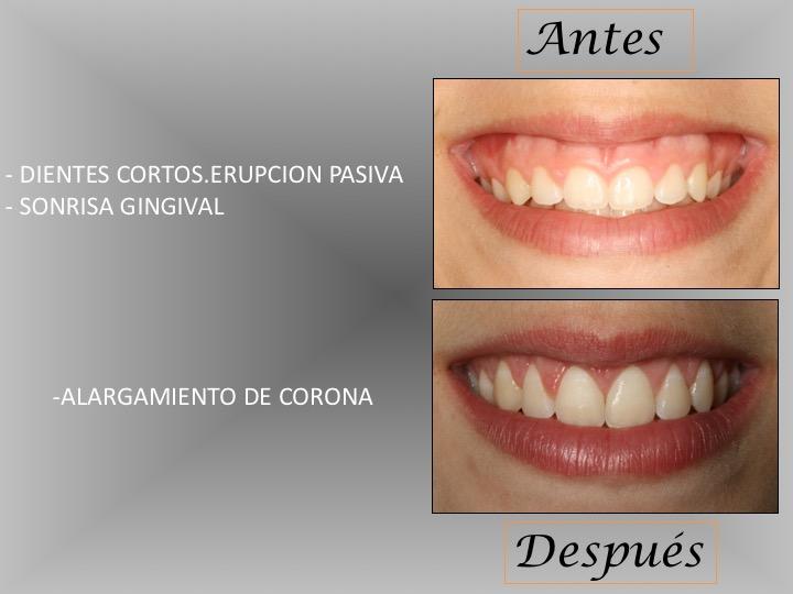 dientes-cortos-2