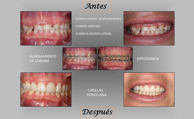 dientes-cortos
