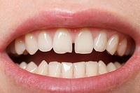 Dientes separados (Diastema - Ortodoncia)
