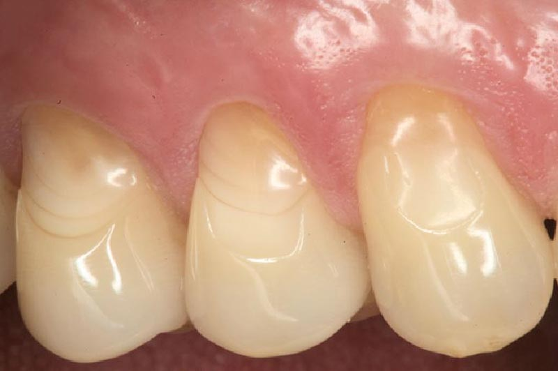 Erosión dental, Glosario BQDC