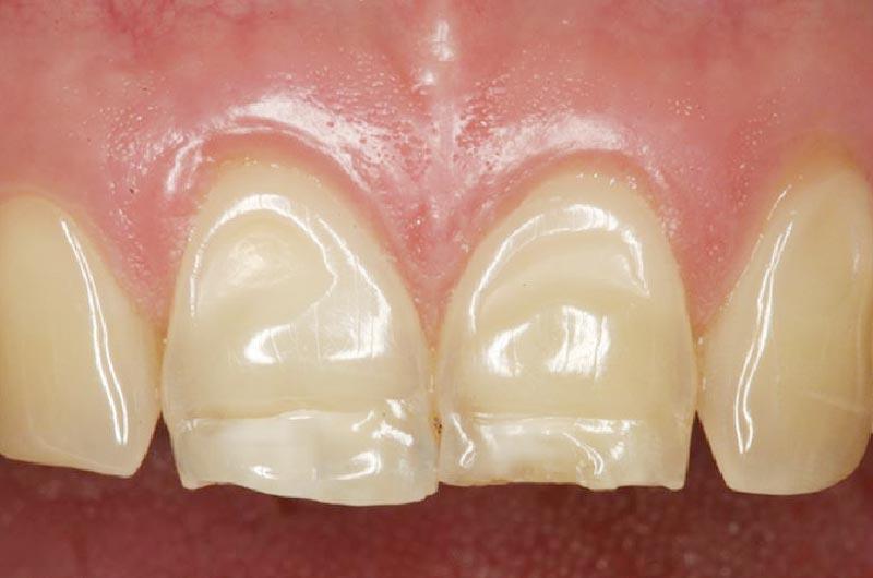 Erosión dental, desgaste inicial