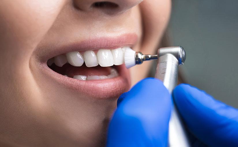 Definición de esmalte dental