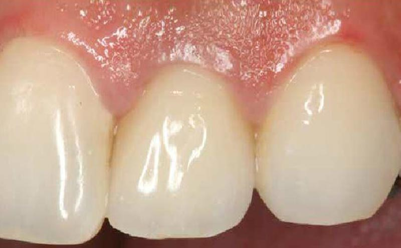 Esmalte dental, Glosario BQDC