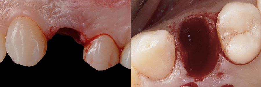 Extracción dental limpia