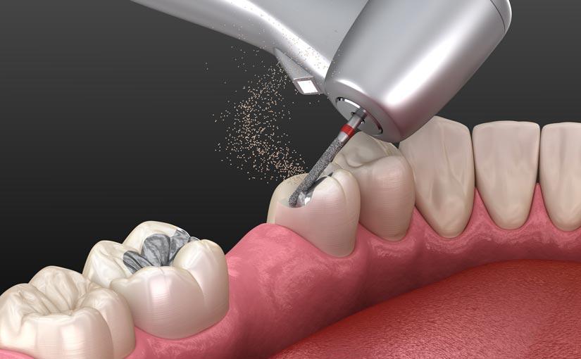 Fresa dental