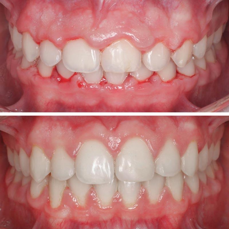 Tratamiento de gingevectomía, Hiperplasia gingival