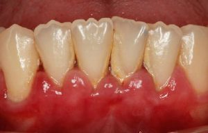 Ginivitis, infección en la encía, Glosario BQDC