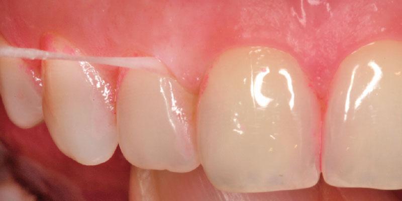 Hilo dental, Glosario BQDC