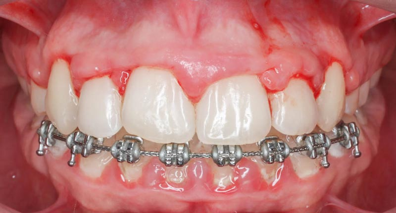 Hiperplasia gingival