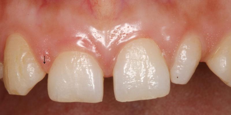 Hipodontia de uno de los incisivos laterales