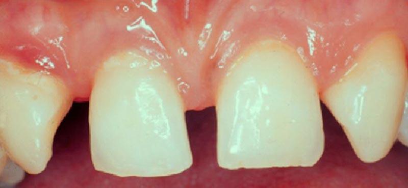 Hipodontia, ausencia dental