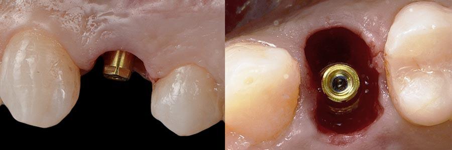 Implante dental en el espacio de un premolar