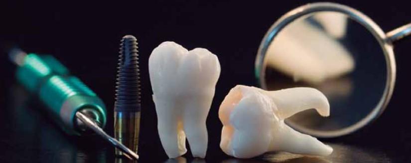 Pioneros en implantes dentales