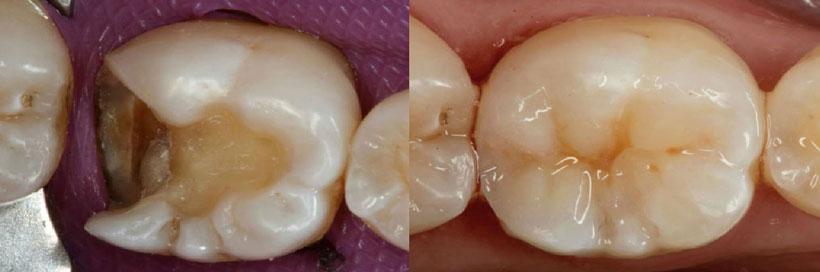 Incrustación onlay de un molar, Glosario BQDC