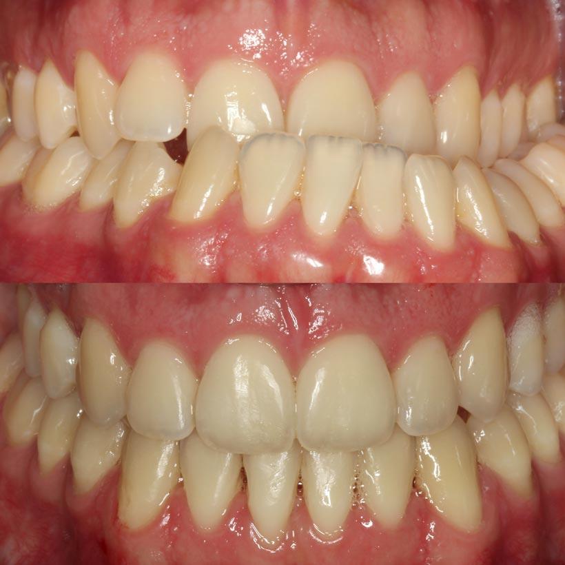 Inicio y final proceso con ortodoncia, Glosario BQDC
