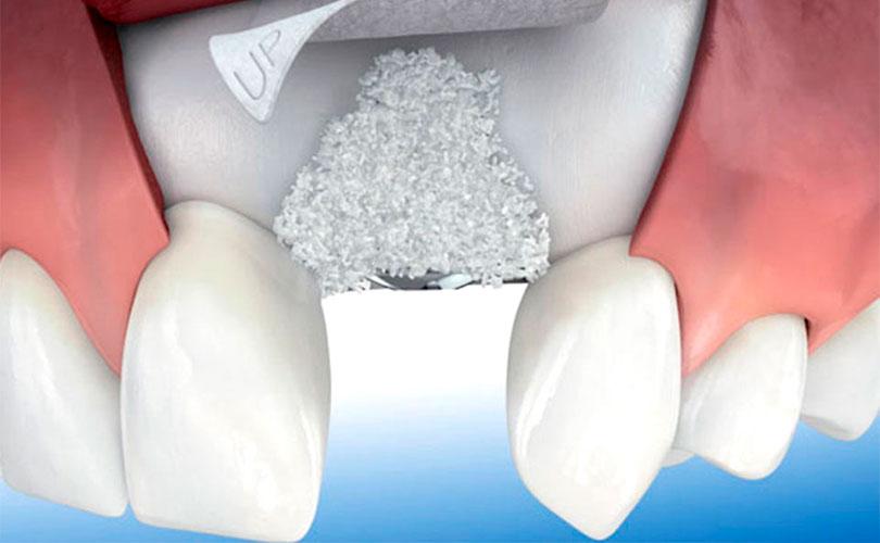 injerto-oseo-implante