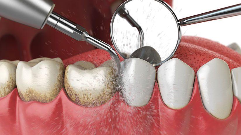 Profilaxis o limpieza dental profesional