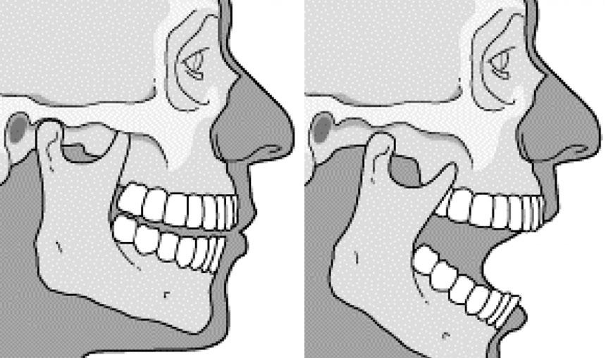 Luxación mandibular qué es
